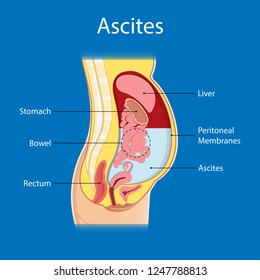 what is ascites in medical terms