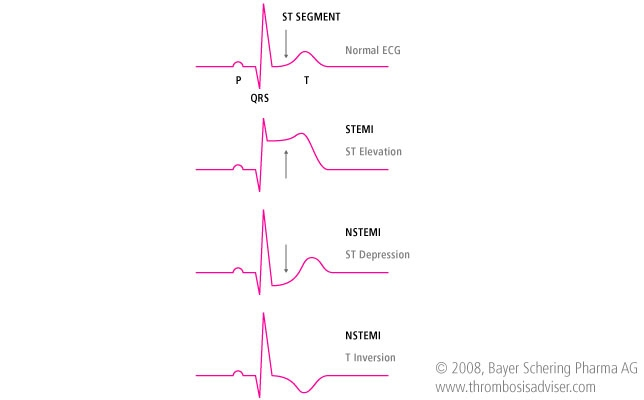 what is nstemi in medical terms